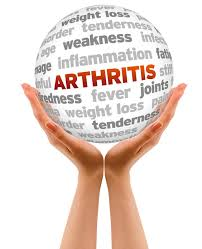 Arthritis Treatment Arthritis Treatment ranges from turmeric diet addition to Joint Advance
