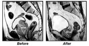 Before and After PAE Enlarged Prostate treated with Prostate Artery Embolization and medicated with Prostacet