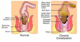 Colon Problem Colon Problem can be remedied through all natural supplements in the form of Bowtrol and Digest It