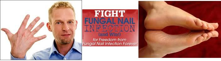 Fighting Nail Fungus Fighting Nail Fungus now includes 2 new prescription topical solutions behind the 2 step Claripro treatment