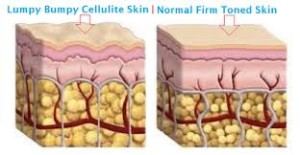 How To Reduce Cellulite 300x155 Cellulite has its own kryptonite in the form of Revitol Cellulite Solution