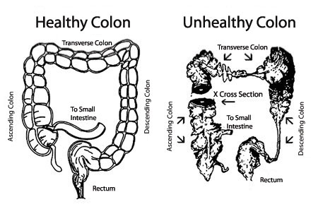 How to Detect Colon Problem Colon Problem can be remedied through all natural supplements in the form of Bowtrol and Digest It