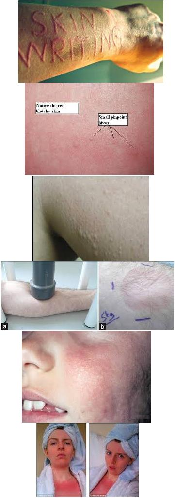 Physical Urticaria Types Physical Urticaria are physically stimulated hives coming in a variation of types all treatable with Oxyhives homeopathic spray