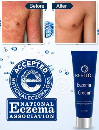 Revitol Eczema Cream Before After Revitol Eczema Cream is a 100% natural injection free solution for young and radiant looking skin
