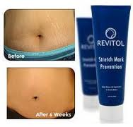 Revitol Stretch Mark Image Revitol Stretch Mark Cream prevents the formation of stretch marks during pregnancy