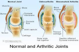 Rheumatoid Arthritis Rheumatoid Arthritis prevention involves diet changes and Natural Body Defense supplement intake