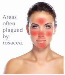 Rosacea Prevention Rosacea Prevention starts with avoidance of anomaly triggers and ends with application of Revitol Rosacea Cream