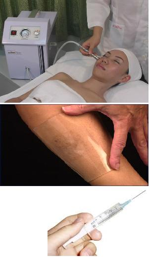 Scar Removal Tips Scar Removal cream significantly reduces skin discoloration and darkening associated with scarring