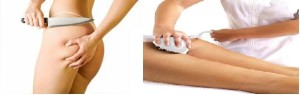 Surgery 300x95 Cellulite has its own kryptonite in the form of Revitol Cellulite Solution