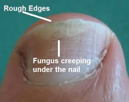 Toenail Fungus Warning Sign Toenail Fungus prevention consists of 5 steps while treatment consists of Claripros 2 step homeopathic system