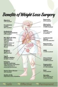 Weight Loss Surgery Pros 200x300 Weight Loss Surgery provides solution to both weight loss problem and type 2 diabetes condition