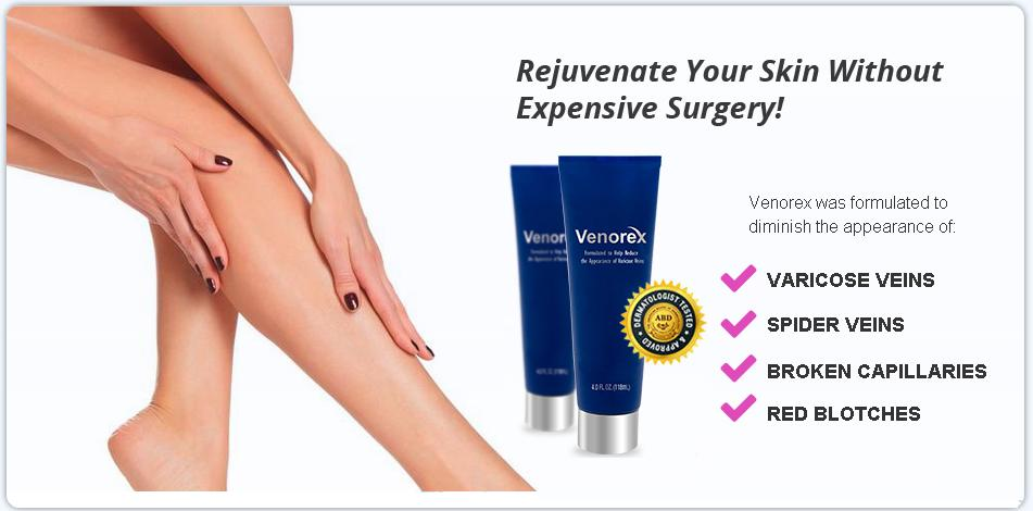 What Venorex Does Venorex is a professional strength formula diminishing the appearance of varicose, spider, and thread veins, broken capillaries, red blotches and under eye dark circles