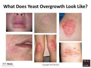 Yeast Overgrrowth 300x225 Yeast Overgrowth is popularly remedied through a safe and complete homeopathic solution, that is, Yeastrol